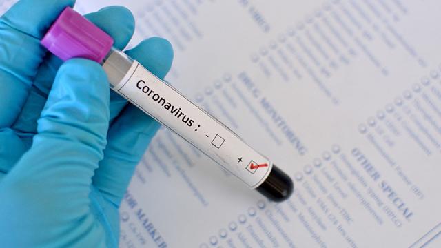 Вчені показали нові фото коронавірусу під мікроскопом