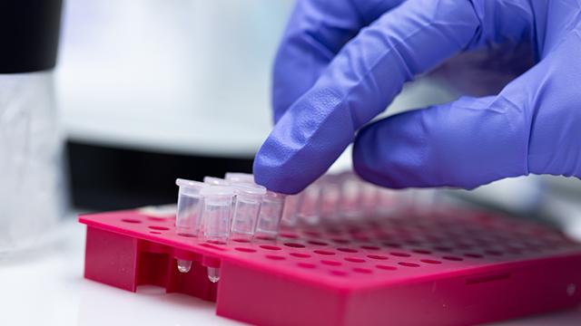Коронавірус у світі: кількість хворих на 3 червня