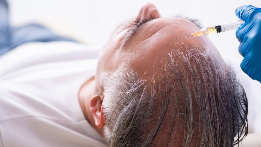 Пандемія призвела до збільшення попиту на трансплантацію волосся
