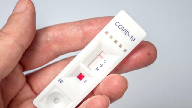 Близько 40% українців мають антитіла до Covid-19