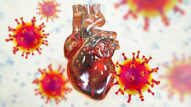 Запалення серця: Covid-19 збільшує ризик розвитку міокардиту